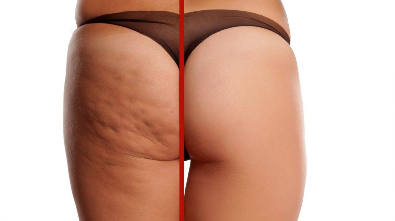 Neu in der Beautymanufactur – Brust- und Postraffung