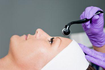 Microneedling – die Behandlung für Problemhaut