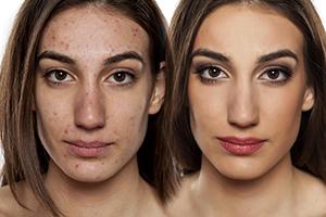 Schälkuren Peelings Beautymanufactur