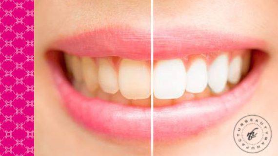 Sorry, Du hast da was Gelbes im Mund! – Oh, das sind ja Deine Zähne…